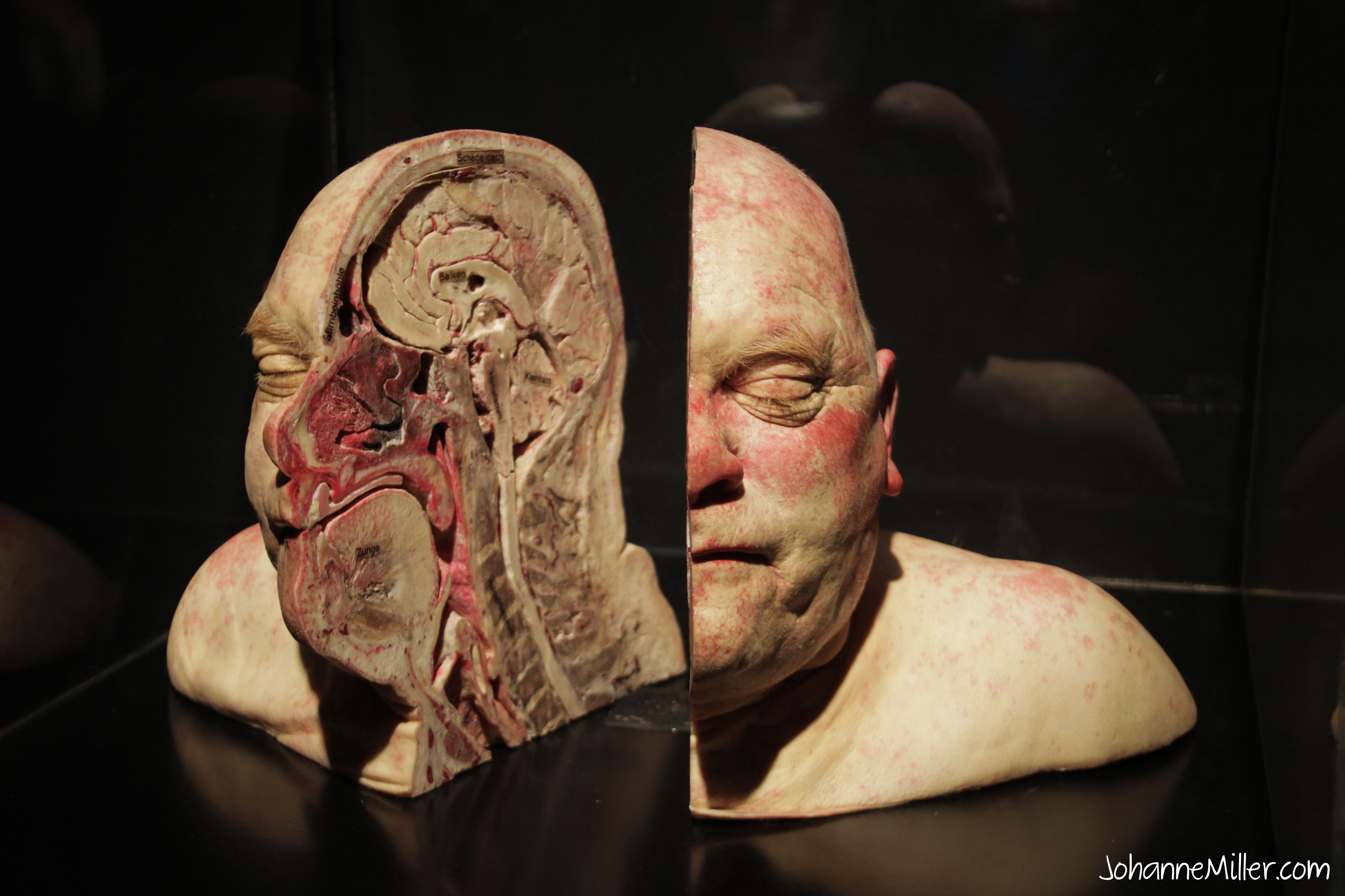 Bodies Revealed besides Nerve as well Nematoda likewise The Human Body 1959 likewise Discovery Times Square New York Body Worlds Pulse And Marvel Avengers Station. on bodies exhibit circulatory system